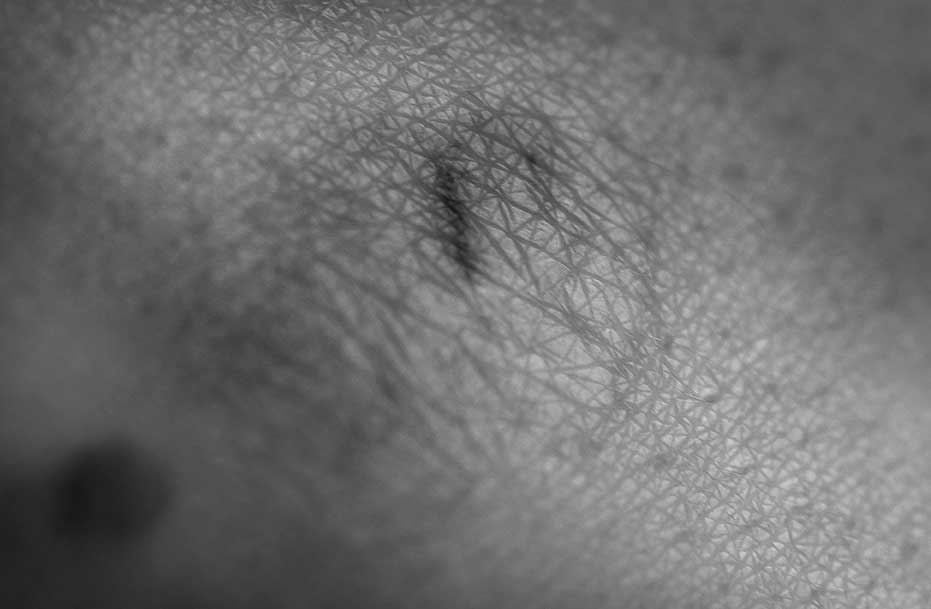 Cicatriz. Ruina corporal. Body landscapes